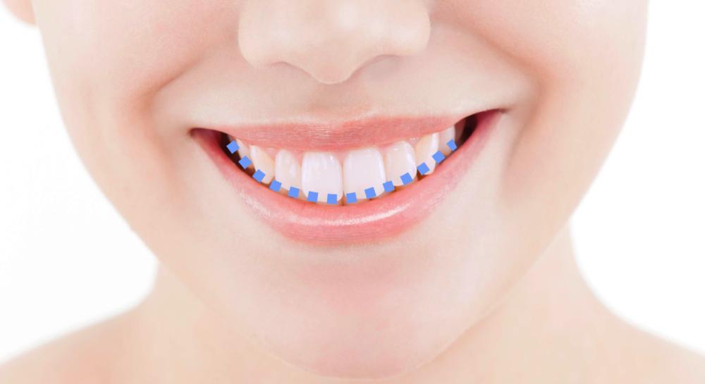 「スマイルライン」と「Eライン」が整うと笑顔は美しい【審美歯科】