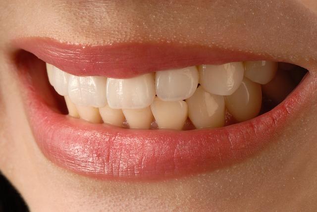【部分矯正】前歯のみの矯正はできる?費用と治療期間は?