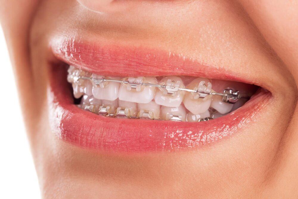 ドクターに聞く歯列矯正「目立たないホワイトワイヤーとは」