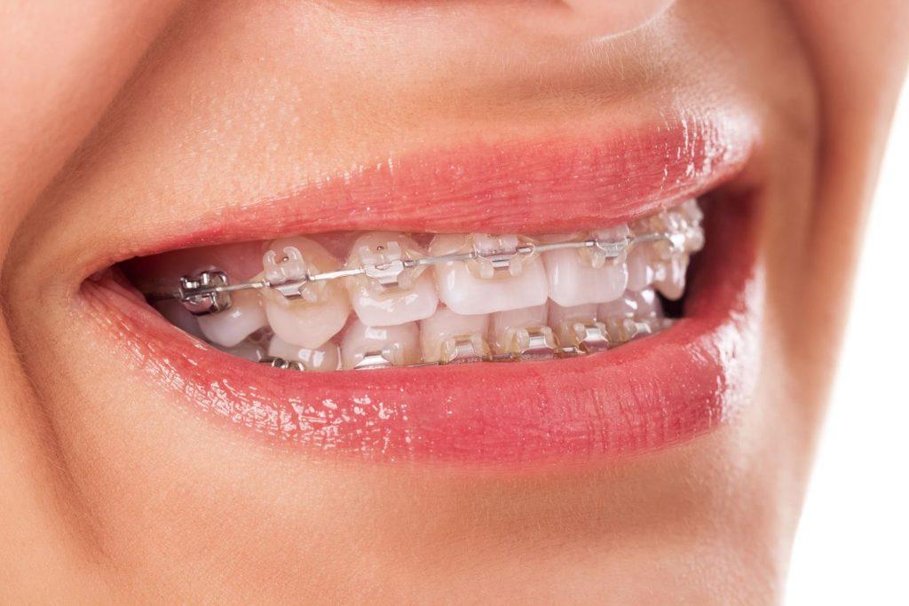 食べ物 歯 列 矯正
