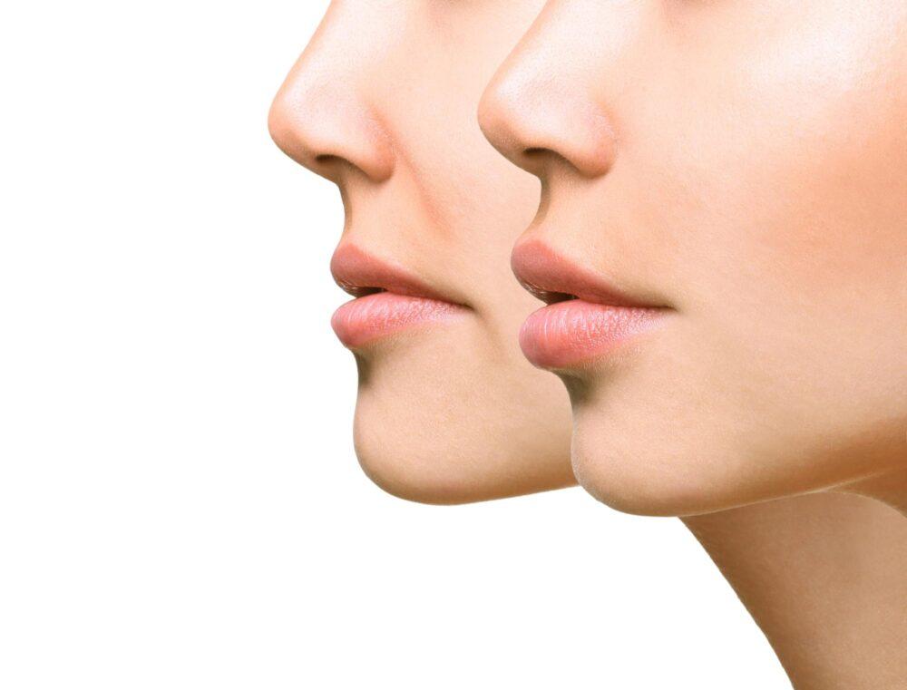 ドクターに聞く歯列矯正|ほうれい線は矯正で変化する?