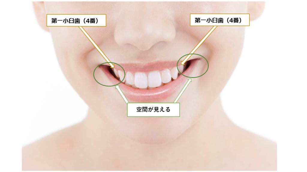 人中と歯列矯正