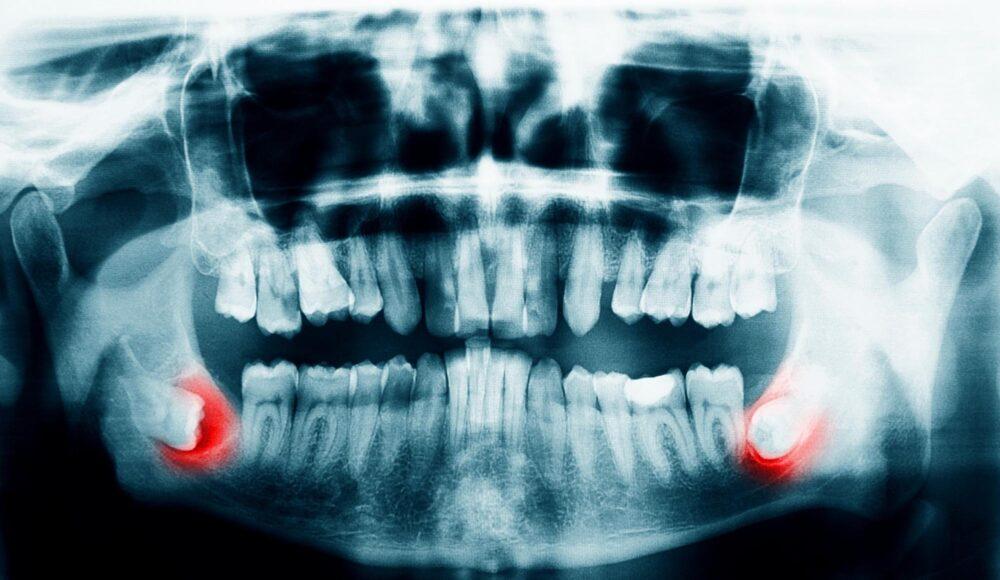 ドクターに聞く歯列矯正|矯正中に「親知らず」が生えてきたら