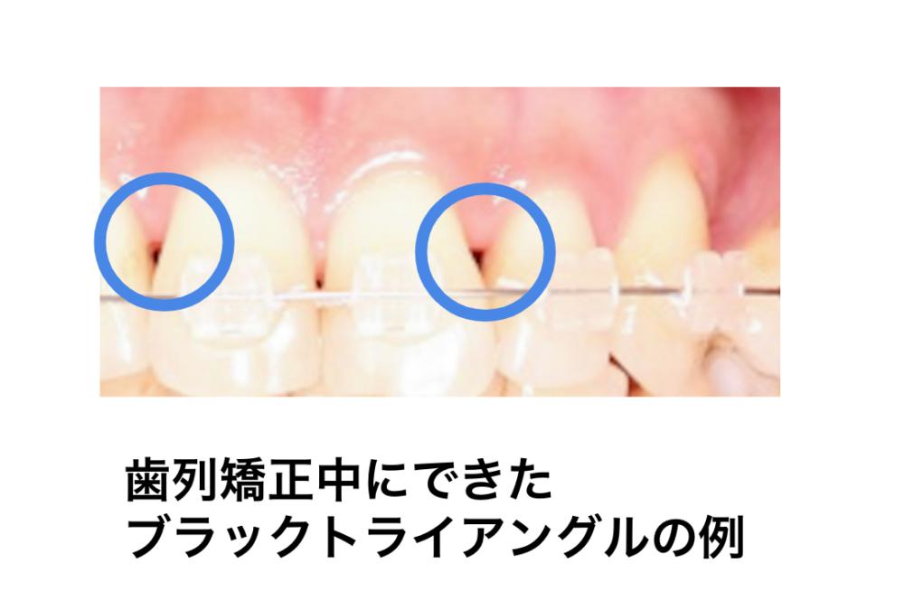 ドクターに聞く歯列矯正「ブラックトライアングルの原因は?」