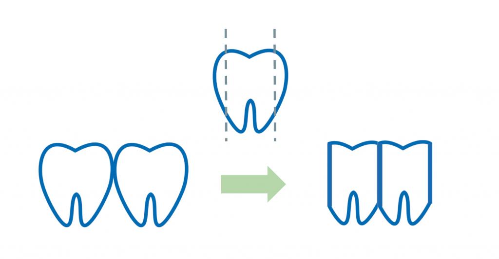 歯を削って寄せる|ドクターに聞く歯列矯正「ブラックトライアングル」って何?_葛西モア