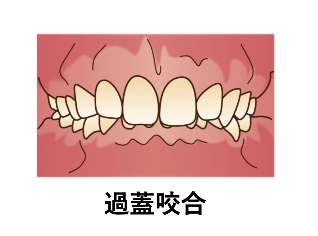 過蓋咬合の歯