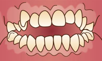 前歯が閉じない「開咬」のイラスト